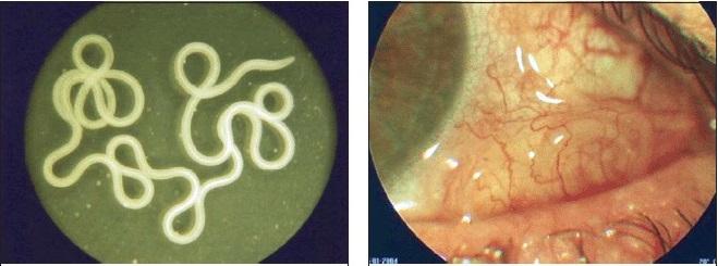 Поражение глаза при стронгилоидозе