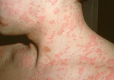 Аллергия при телязиозе у человека