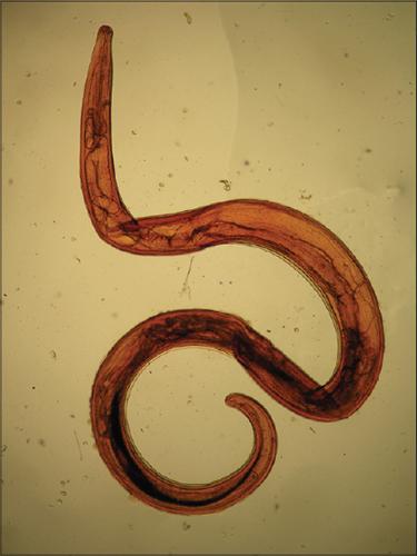 черви у человека под кожей