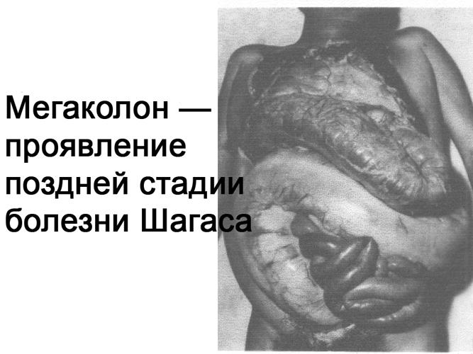 Чем опасна болезнь Шагаса для человека? bolezn_shagasa_megakolon