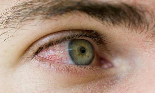 Какие глисты могут паразитировать в глазах человека? demodekoz_glaz