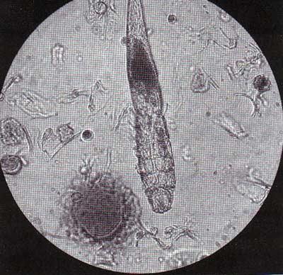 Как проводится анализ на демодекоз? demodex_pod_mikroskopom