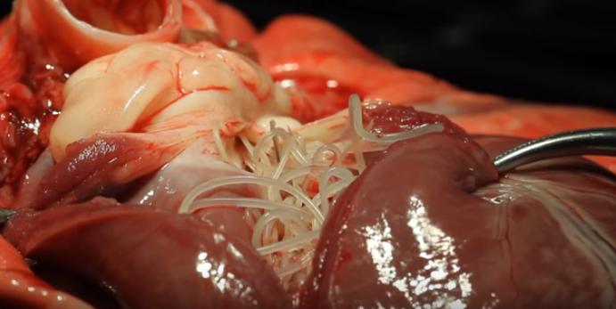 паразиты в сердце человека симптомы
