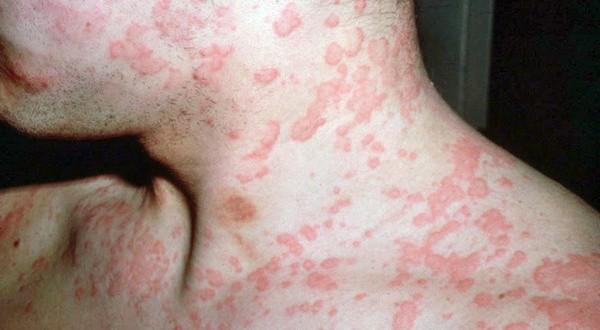 Чем опасен кожный миаз у человека? miaz_simptomy