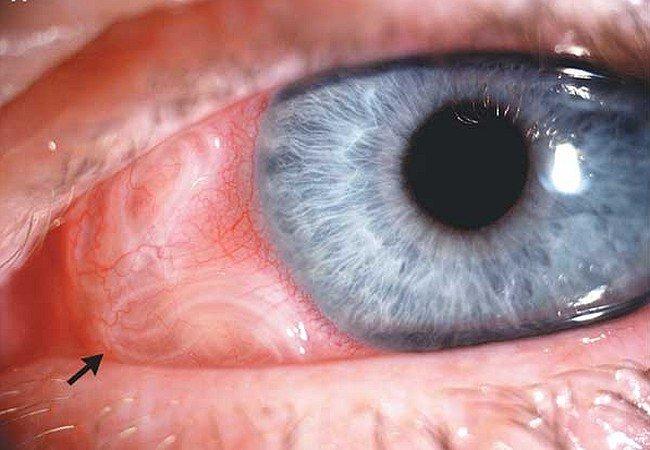 Офтальмомиаз (миаз глаз)