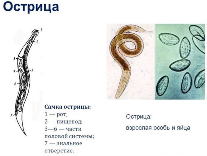 Чем опасен для человека энтеробиоз? ostrica