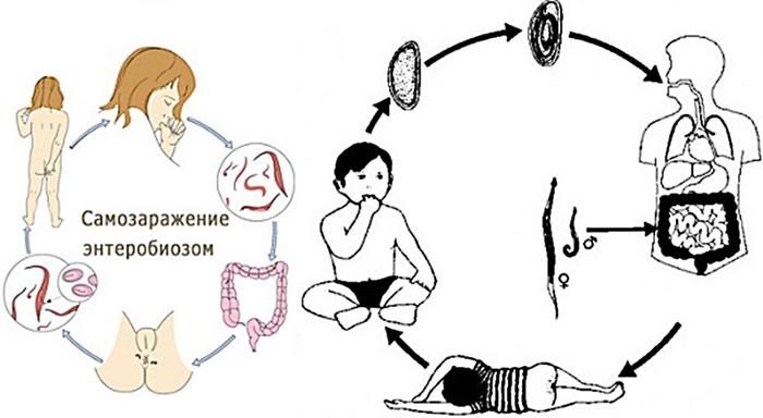 Самозаражение человека энтеробиозом