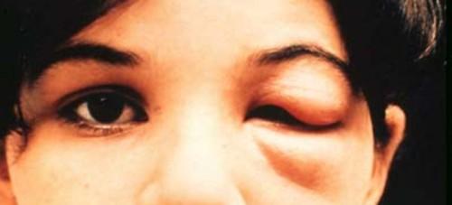 Симптом болезни Шагаса на лице
