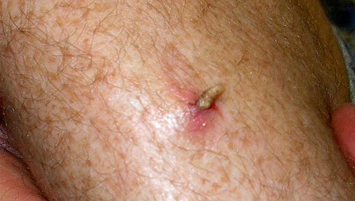 Чем опасен кожный миаз у человека? podkozhniy_miaz