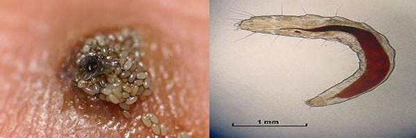 Личинки, являющиеся причиной развития миаза
