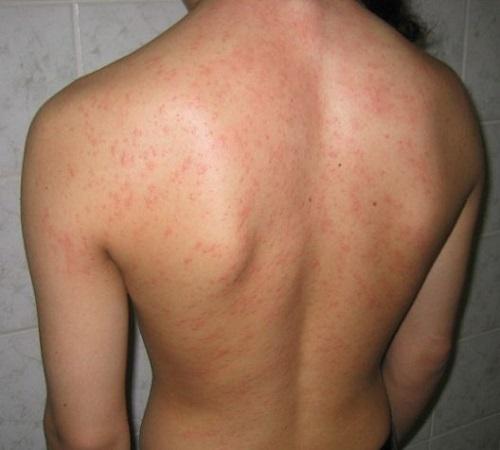 Крапивница, вызванная пылевыми клещами
