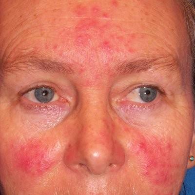 Какими препаратами лечить демодекоз лица? demodekoz_na_lice