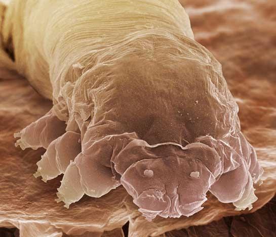 Demodex folliculorum — возбудитель демодекоза век у человека