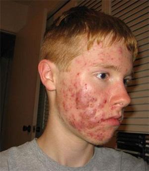 Какими препаратами лечить демодекоз лица? demodex-lisa