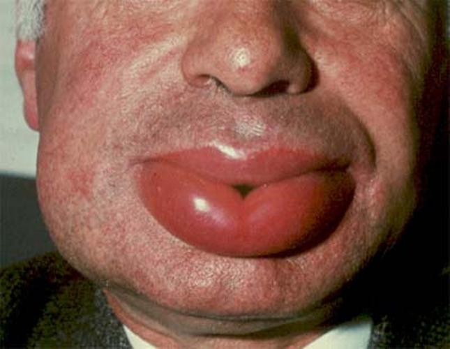 Аллергический отек при возвратном тифе