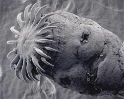 какие виды паразитов бывают у человека фото
