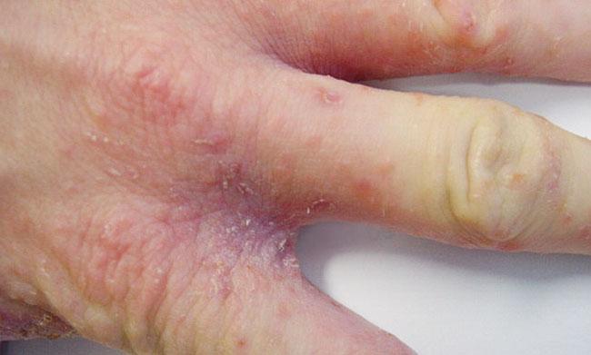 Чесотка между пальцами рук