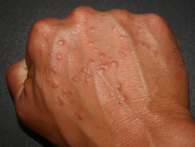 Аллергические высыпания из-за пылевого клеща