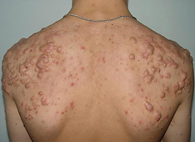 Кожные проявления клещевого риккетсиоза