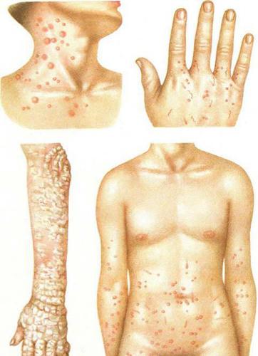 Симптомы чесотки у человека