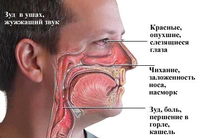 Симптомы паразитирования пылевых клещей