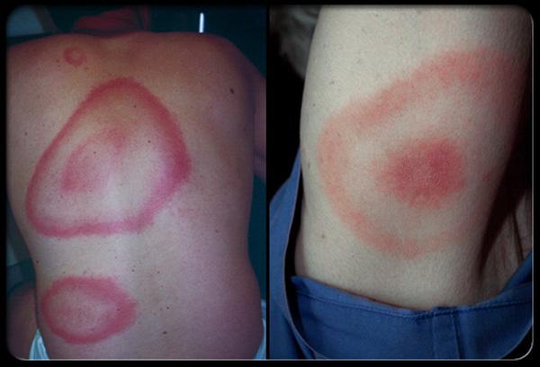 Характерные признаки боррелиоза после укуса клеща