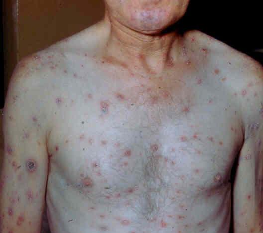 Кожные симптомы возвратного тифа у человека
