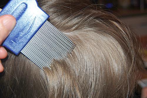 Вычесывание волос гребнем от вшей
