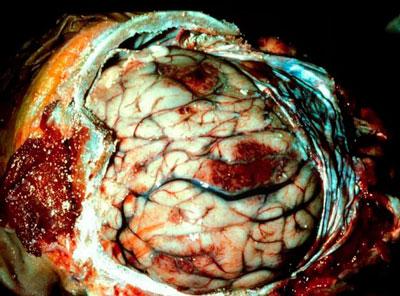 Насколько опасен менингоэнцефалит и как он лечится? meningoencefalit