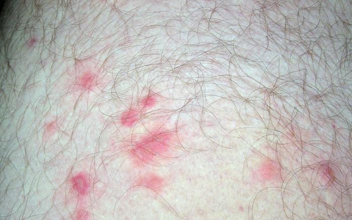 Дерматит как реакция на фекалии постельных клещей