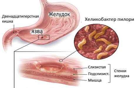 Как проводится лечение Хеликобактер Пилори? xelikobakter-pilori-lechenie-narodnymi-sredstvami