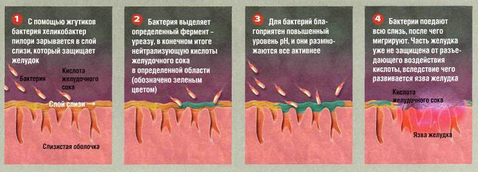 Как проводится лечение Хеликобактер Пилори? yzva_geludka_helikobakter_peroli