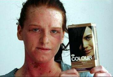 Последствия применения чересчур агрессивных красящих средств