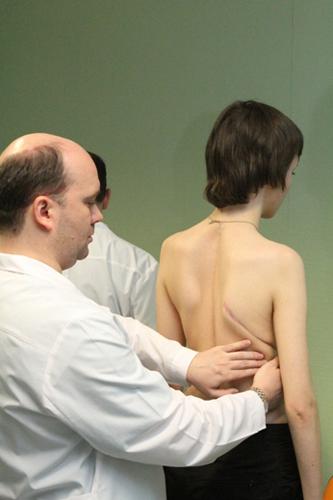 Диагностика идиопатического сколиоза врачом