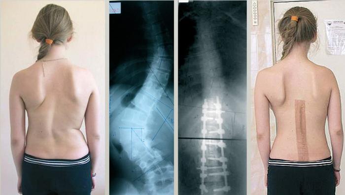 Результаты операции при идиопатическом сколиозе