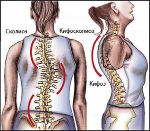 Чем опасен и как проявляется кифосколиоз? kifoskolioz_-_simptomy_diagnostika_i_lechenie