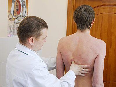 Диагностика кифосколиоза врачом
