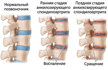 Нормальный и пораженный болезнью Бехтерева позвоночник