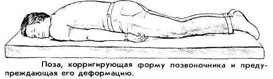 Эффективные упражнения при болезни Бехтерева bolezn_behtereva_vypryamlenie_pozvonochnika