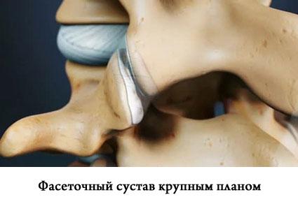 Симптомы и лечение фасеточного синдрома fasetochniy_sustav_foto