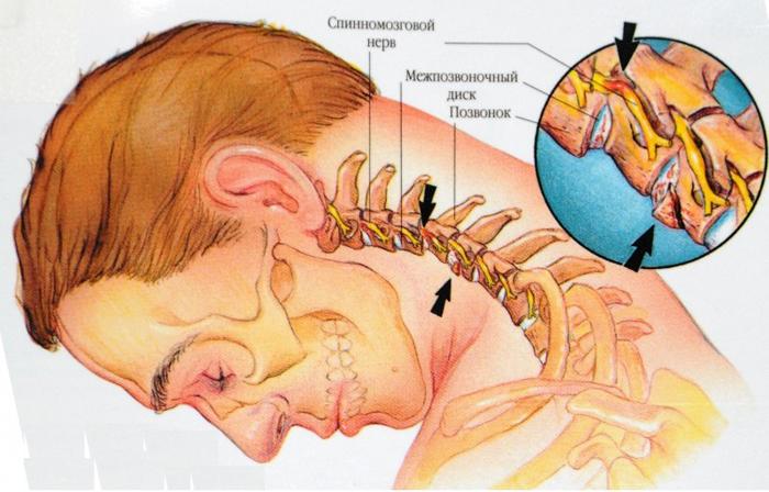 Симптомы и лечение фасеточного синдрома fasetochniy_sustav_prichini