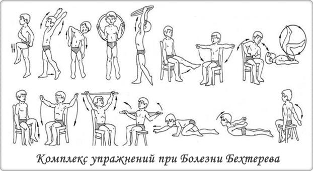 Комплекс упражнений при болезни Бехтерева