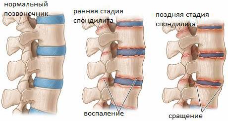 Здоровый и пораженный спондилитом позвоночник