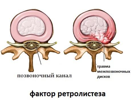 Как лечится ретролистез позвонка? retrolistez_pozvonka