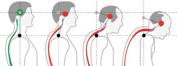 Дыхательная гимнастика при сколиозе по методу катарины шрот