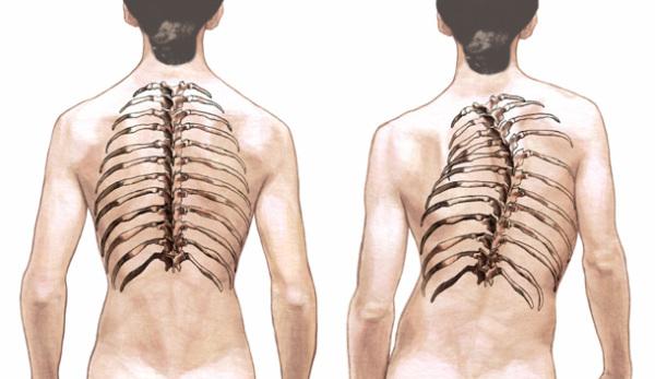 Как лечить сколиоз грудного отдела позвоночника? skolioz-1