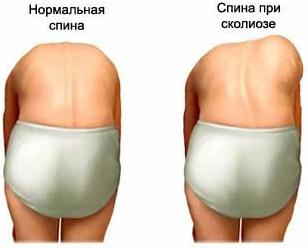 Нормальная и сколиозная спина