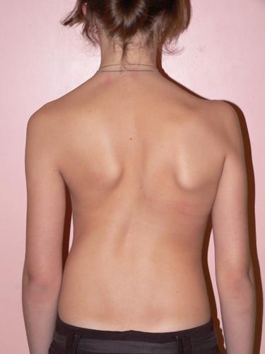 Рекомендации по профилактике нарушения осанки и плоскостопия