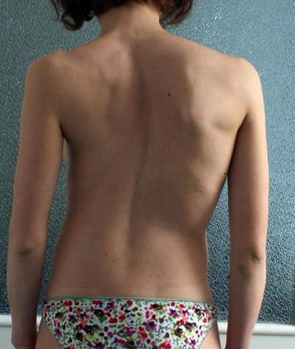 Причины и лечение сколиоза у детей skolioz_detskiy