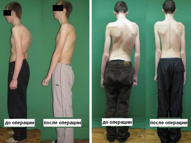 Сколиоз до и после проведения оперативного вмешательства